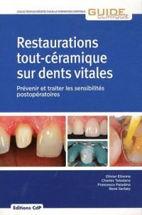 Restauration Tout Céramique Sur Dent Vitale