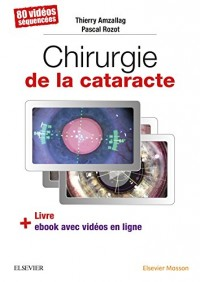 Chirurgie de la cataracte: 60 Videos Sequencees