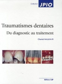 Traumatismes dentaires : Du diagnostic au traitement