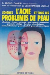 Soignez l'acné et tous les problèmes de peau