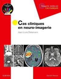 Cas cliniques en neuro-imagerie: Pathologies tumorales