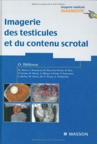 Imagerie des testicules et du contenu scrotal