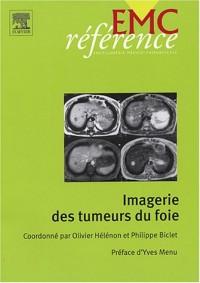 Imagerie des tumeurs du foie