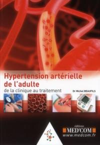 L'Hypertension Arterielle : de la Clinique au Traitement
