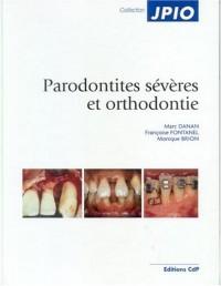 Parodontites sévères et orthodontie