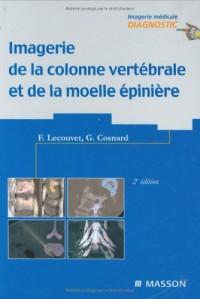 Imagerie de la colonne vertébrale et de la moelle épinière (Ancien Prix éditeur : 110 euros)