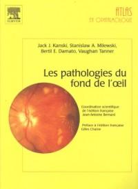 Les pathologies du fond de l'oeil