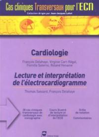 Cardiologie : Lecture et interprétation de l'électrocardiogramme