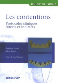 Les contentions: Protocoles cliniques directs et indirects