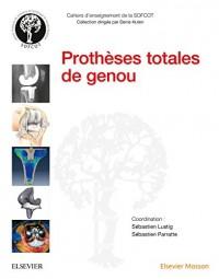PROTHESES TOTALES DU GENOU