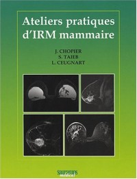 Ateliers Pratiques d'IRM Mammaire
