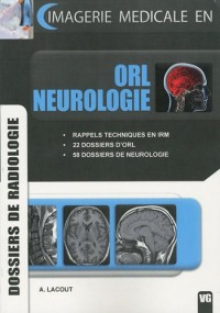 ORL neurologie : Dossiers de radiologie