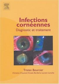 Infections Cornéennes : Diagnostic et Traitement