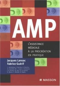 AMP : L'assistance médicale à la procréation en pratique