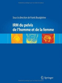 IRM du pelvis de l'homme et de la femme